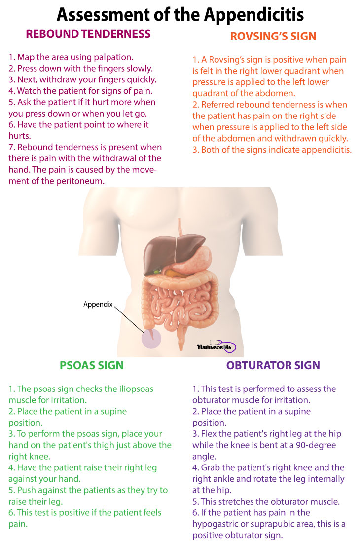 Gastrointestinal-Assessment_Appendicitis