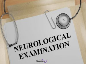 Read more about the article 5 Tips for Performing a Nursing Health Assessment of the Nervous System